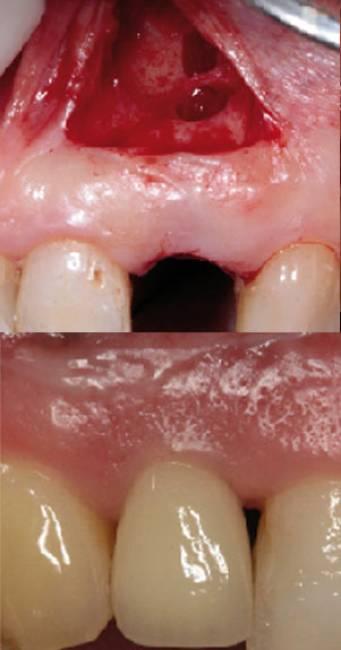Sinus Floor Elevation Using Osteotomes : Tri dental implants webinare