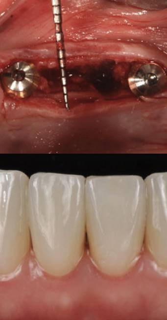 Sinus Floor Elevation With Osteotomes : Tri dental implants webinare